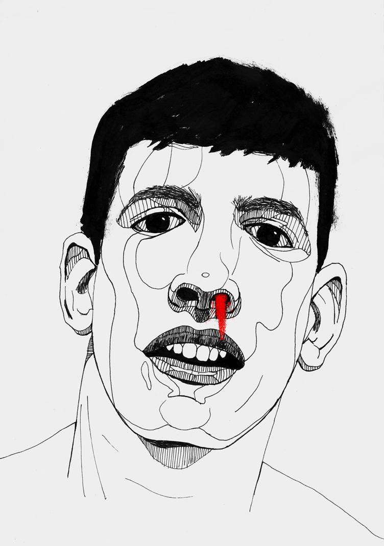 Nose blood